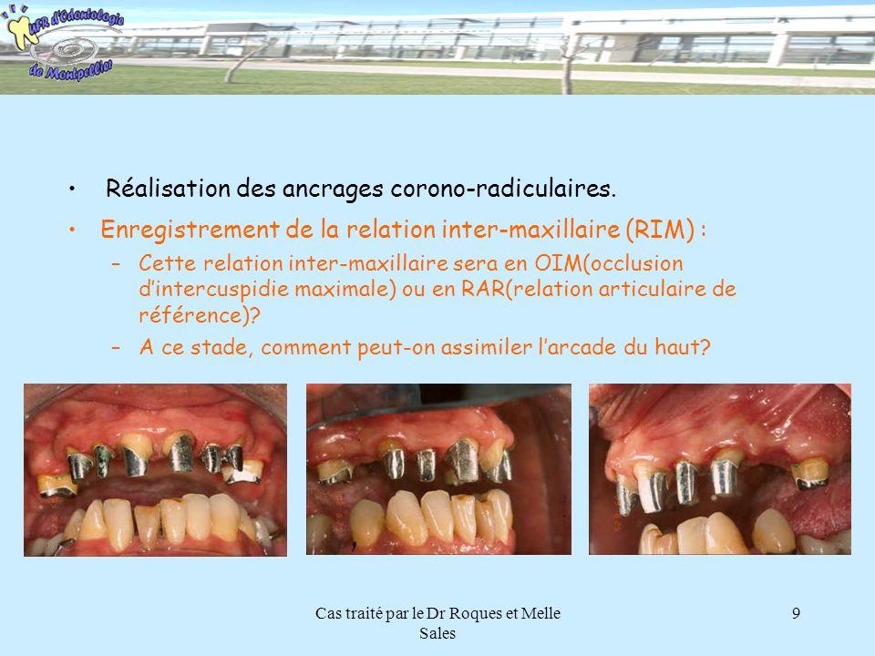 Cas traité par le Dr Roques et Melle Sales 9 Enregistrement de la relation inter-maxillaire (RIM) : –Cette relation inter-maxillaire sera en OIM(occlu