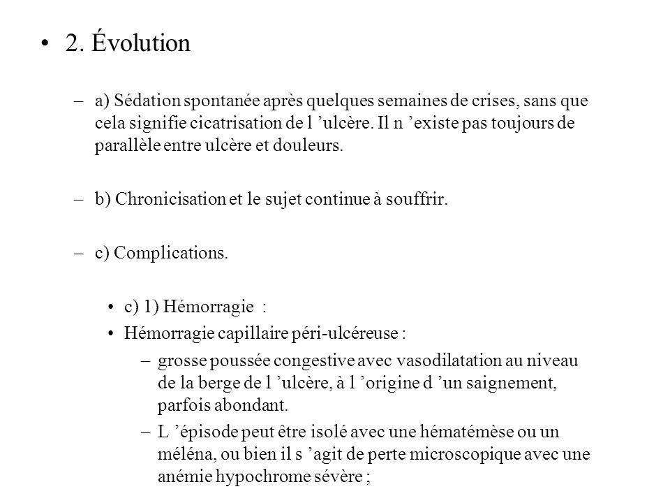 2. Évolution –a) Sédation spontanée après quelques semaines de crises, sans que cela signifie cicatrisation de l ulcère. Il n existe pas toujours de p