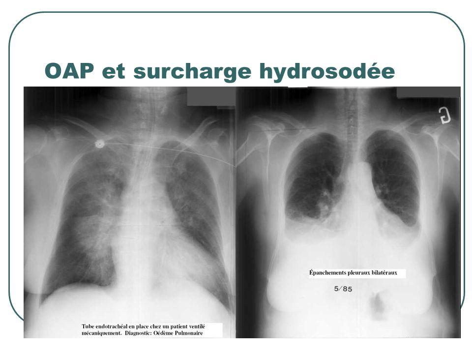 Anomalies de lhoméostasie hydro-sodée Diurèse : Conservée > 500 ml /j (mais pas forcément adaptée) Oligurie : 100 – 500 ml /j Anurie : 0à 100 ml /j Si