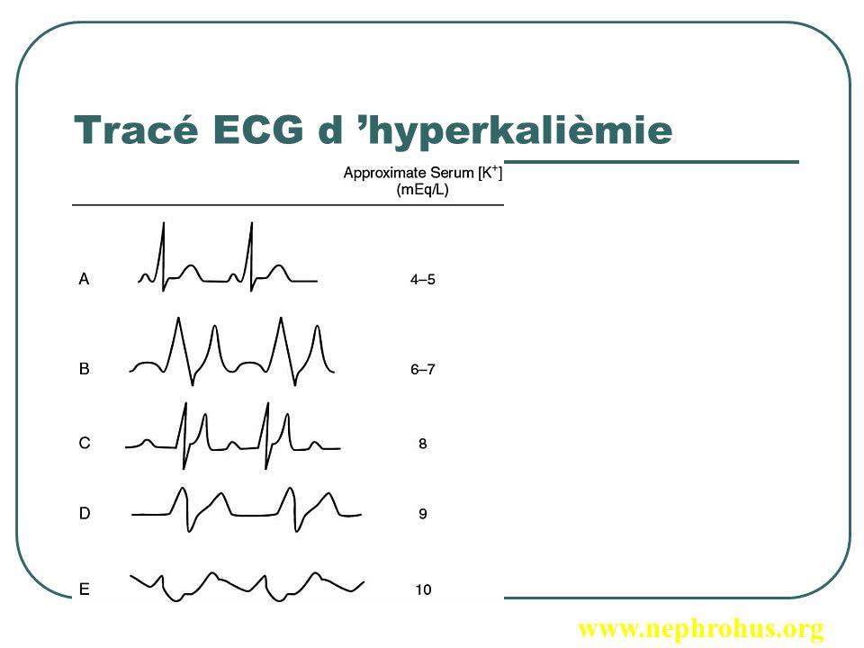 Facteurs de risque Surcharge hydrosodée : OAP asphyxique HTA maligne Hyperkaliémie Acidose métabolique