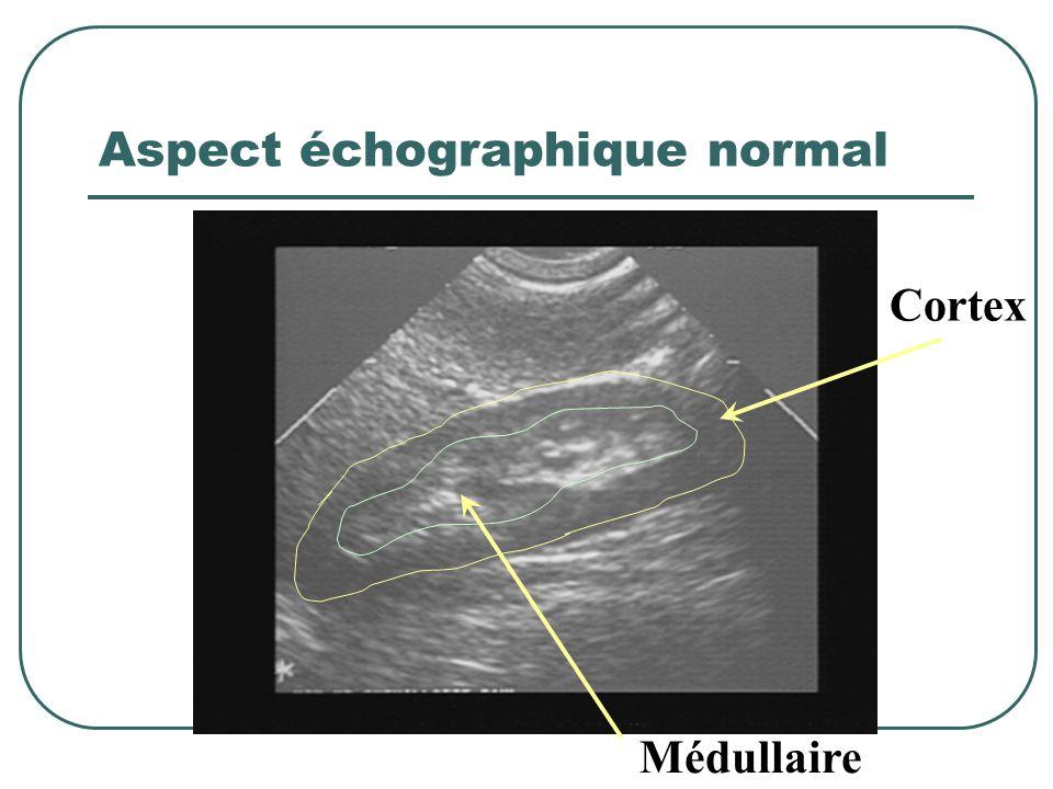 Critères de distinction (2) IRAIRC Taille des reinsNleDiminués (sauf amylose, diabéte, polykystose) Aspect échoNleDédifférencié AnémieNon (sauf Sd hém