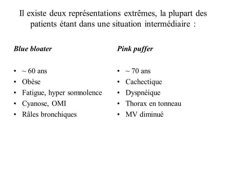 Il existe deux représentations extrêmes, la plupart des patients étant dans une situation intermédiaire : Blue bloater ~ 60 ans Obèse Fatigue, hyper s