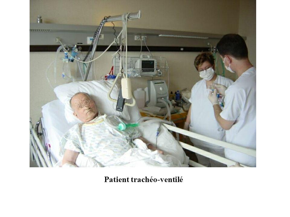 Patient trachéo-ventilé