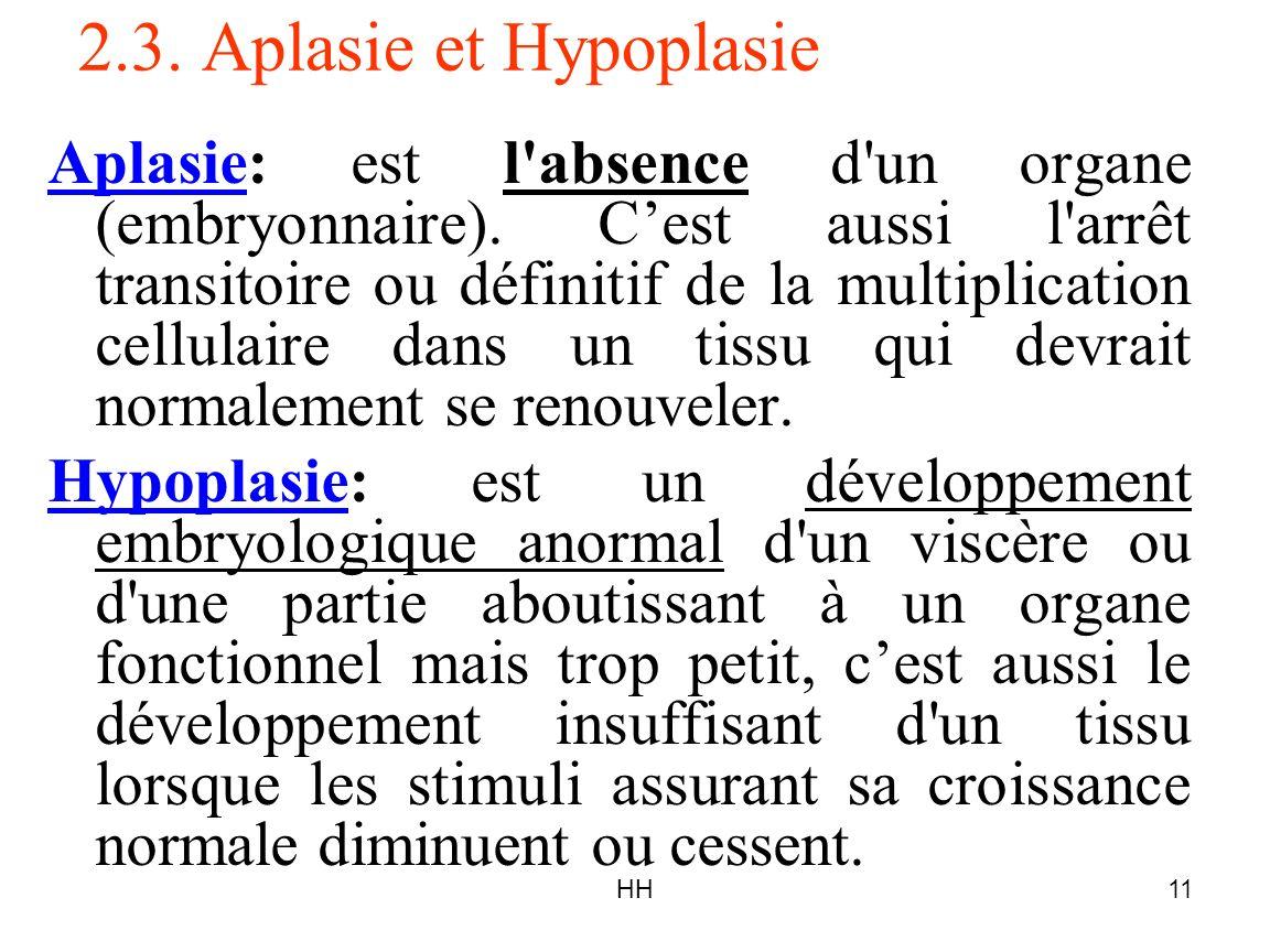 HH11 2.3. Aplasie et Hypoplasie Aplasie: est l'absence d'un organe (embryonnaire). Cest aussi l'arrêt transitoire ou définitif de la multiplication ce