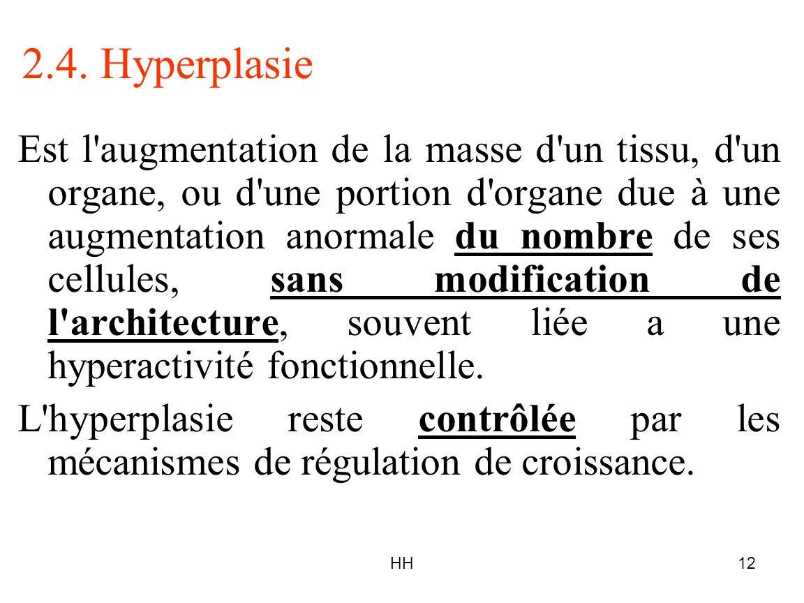 HH12 2.4. Hyperplasie Est l'augmentation de la masse d'un tissu, d'un organe, ou d'une portion d'organe due à une augmentation anormale du nombre de s