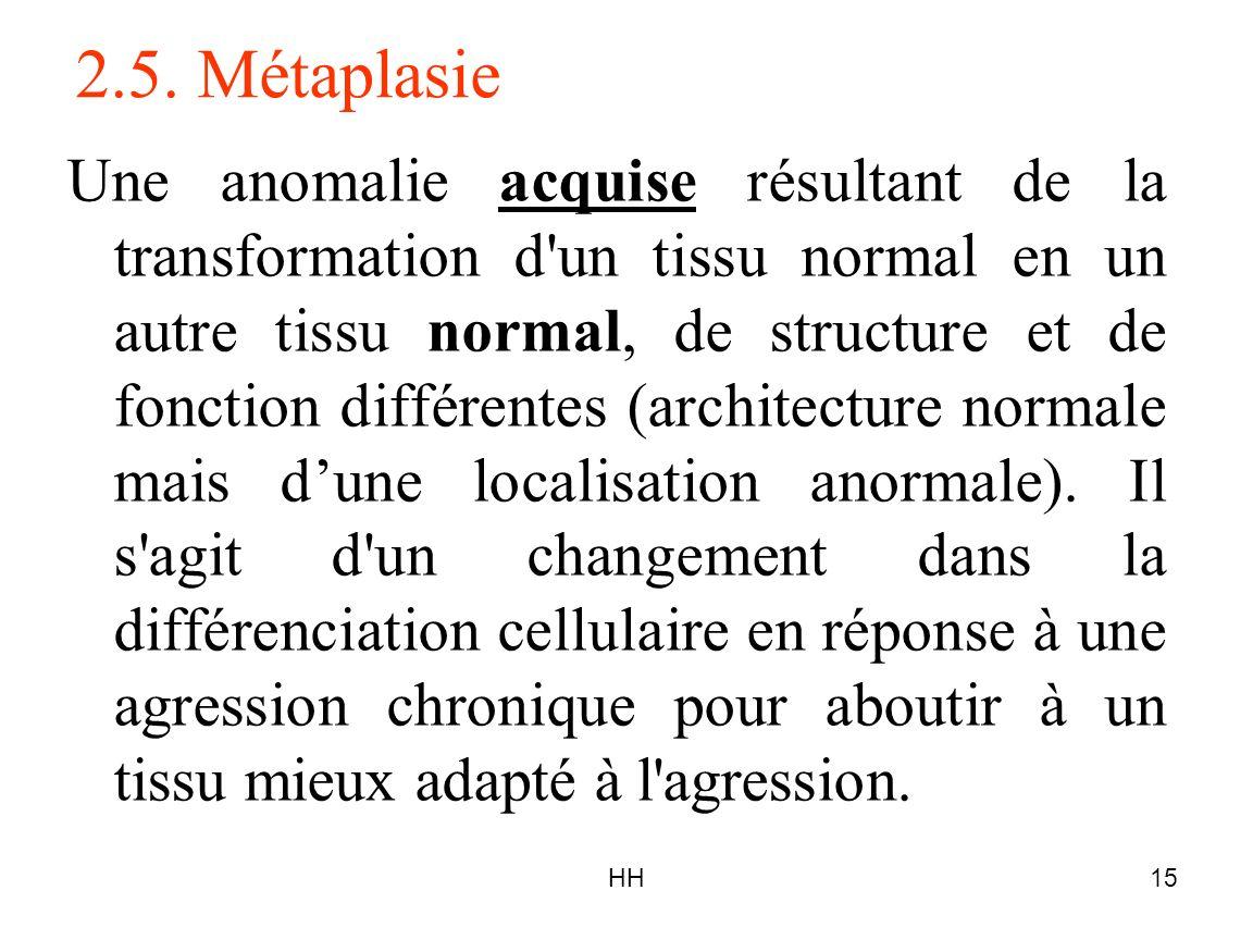 HH15 2.5. Métaplasie Une anomalie acquise résultant de la transformation d'un tissu normal en un autre tissu normal, de structure et de fonction diffé