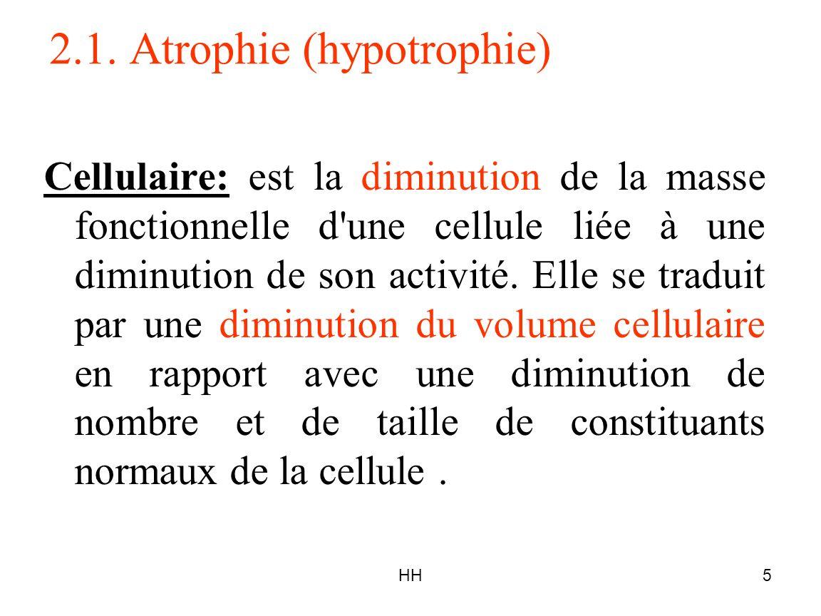 HH5 2.1. Atrophie (hypotrophie) Cellulaire: est la diminution de la masse fonctionnelle d'une cellule liée à une diminution de son activité. Elle se t
