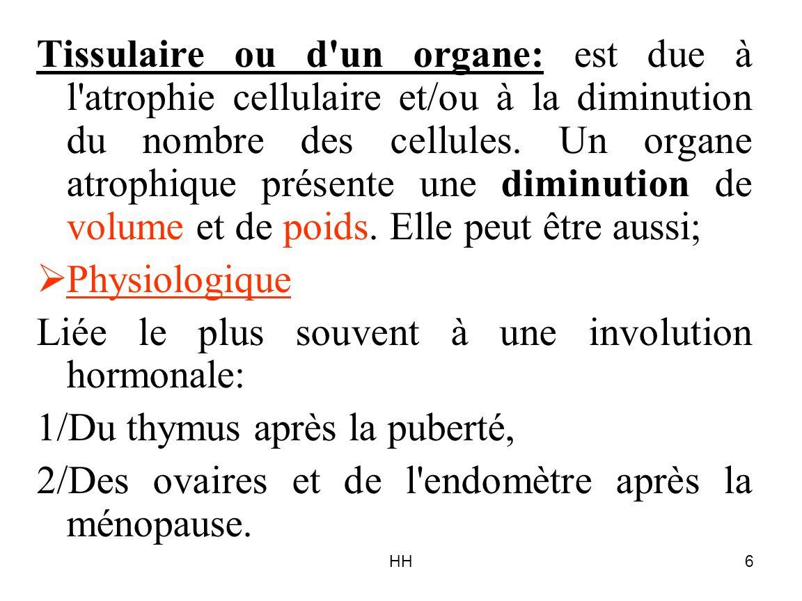 HH6 Tissulaire ou d'un organe: est due à l'atrophie cellulaire et/ou à la diminution du nombre des cellules. Un organe atrophique présente une diminut