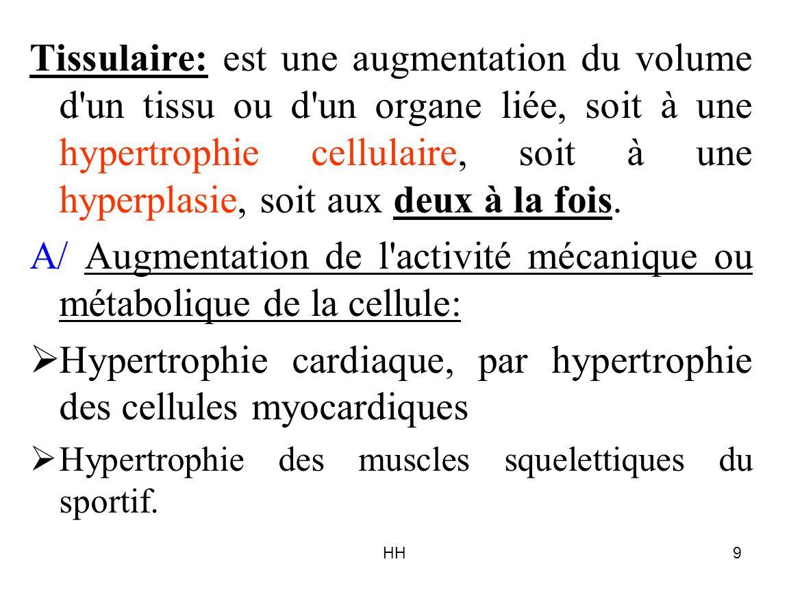 HH9 Tissulaire: est une augmentation du volume d'un tissu ou d'un organe liée, soit à une hypertrophie cellulaire, soit à une hyperplasie, soit aux de