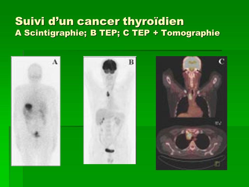 Suivi dun cancer thyroïdien A Scintigraphie; B TEP; C TEP + Tomographie