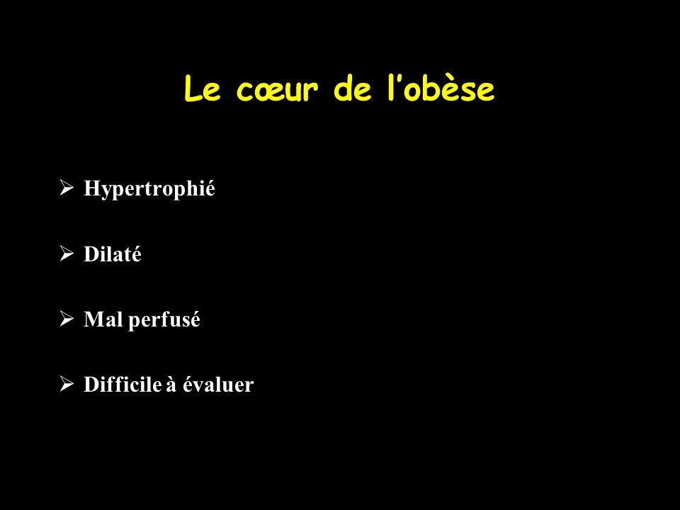 Le cœur de lobèse Hypertrophié Dilaté Mal perfusé Difficile à évaluer