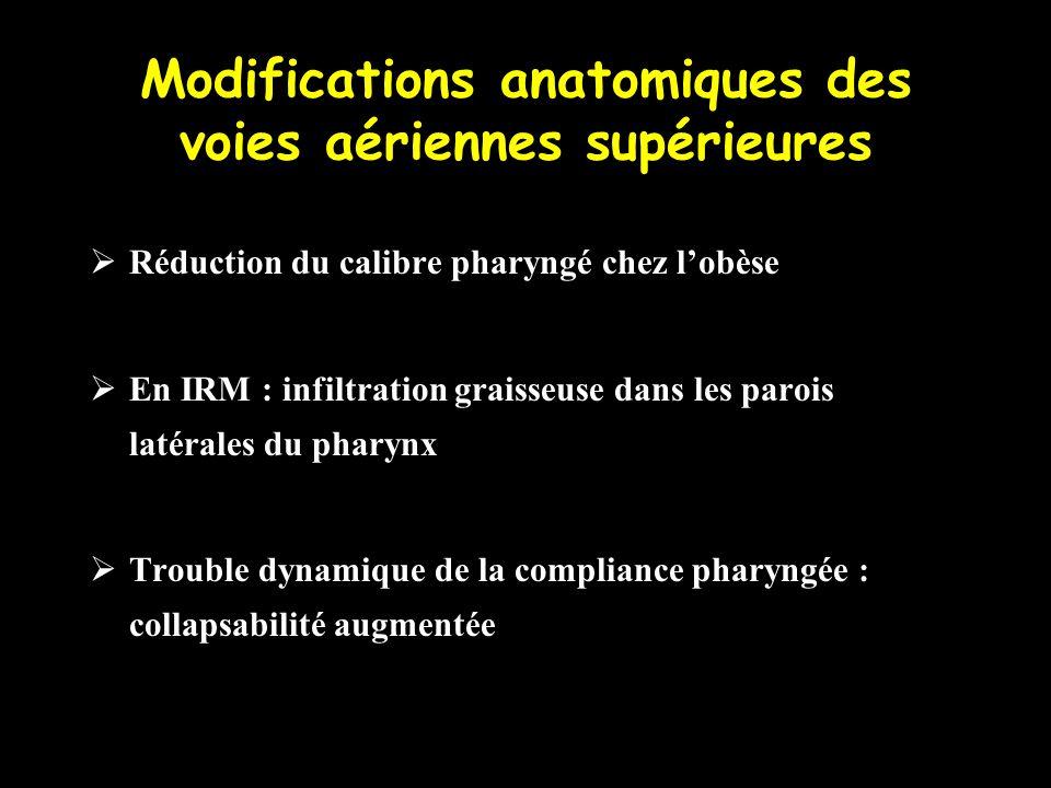 Modifications anatomiques des voies aériennes supérieures Réduction du calibre pharyngé chez lobèse En IRM : infiltration graisseuse dans les parois l