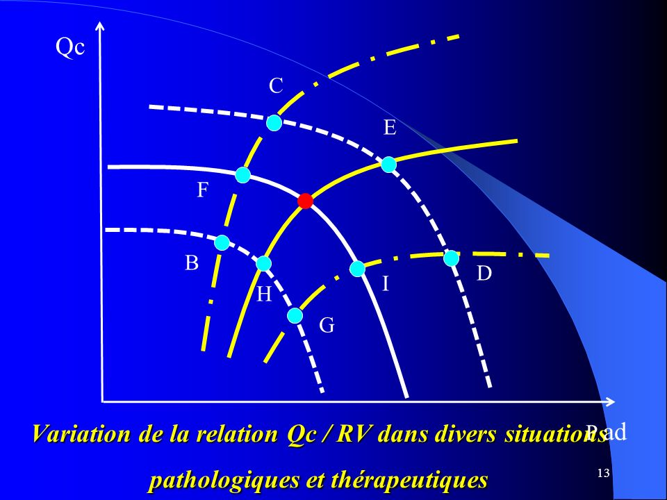13 C E D I G B F H Variation de la relation Qc / RV dans divers situations pathologiques et thérapeutiques P ad Qc