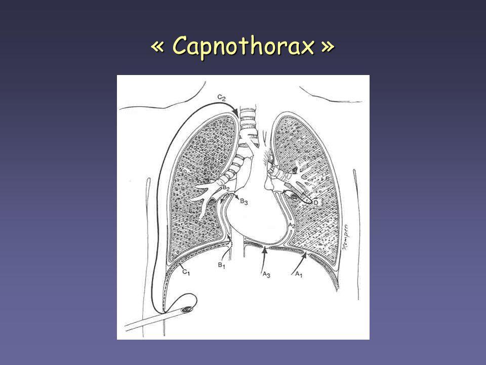 « Capnothorax »