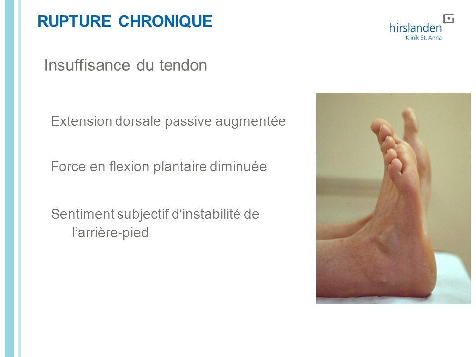 RUPTURE CHRONIQUE Insuffisance du tendon Extension dorsale passive augmentée Force en flexion plantaire diminuée Sentiment subjectif dinstabilité de l