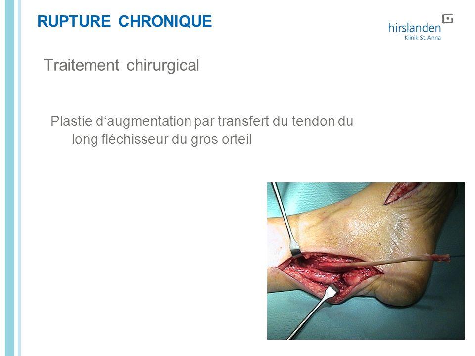 RUPTURE CHRONIQUE Plastie daugmentation par transfert du tendon du long fléchisseur du gros orteil Traitement chirurgical