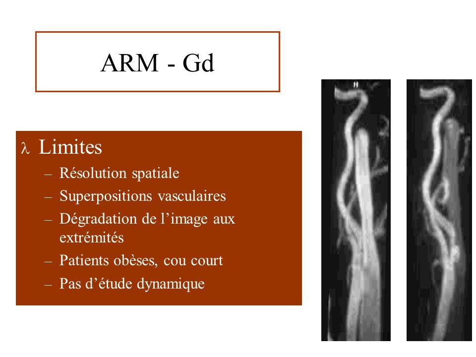 ARM - Gd Limites – Résolution spatiale – Superpositions vasculaires – Dégradation de limage aux extrémités – Patients obèses, cou court – Pas détude dynamique