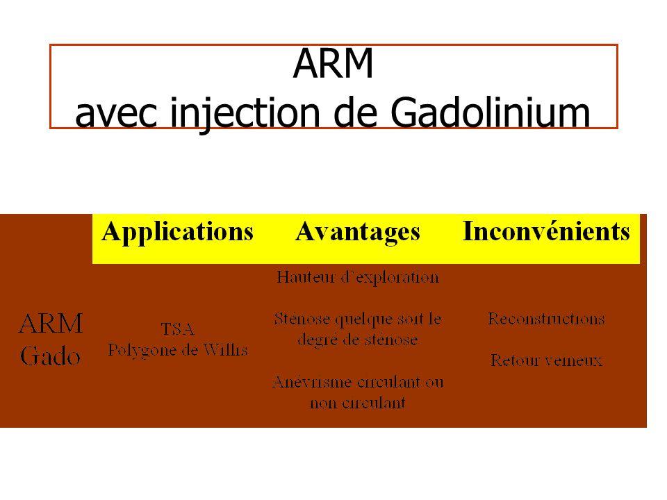 ARM avec injection de Gadolinium