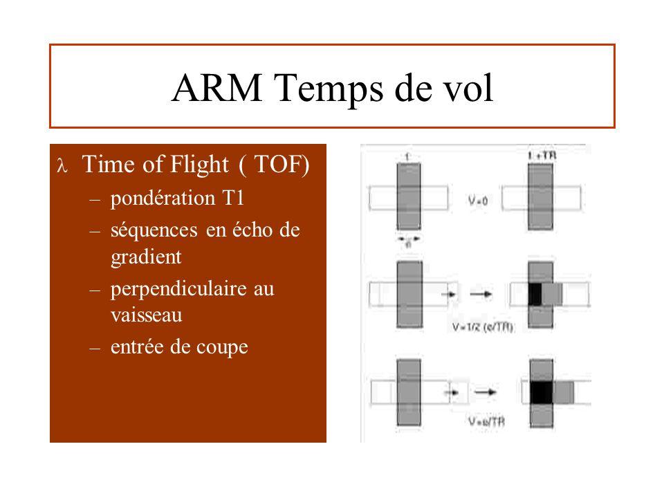 ARM Temps de vol Time of Flight ( TOF) – pondération T1 – séquences en écho de gradient – perpendiculaire au vaisseau – entrée de coupe
