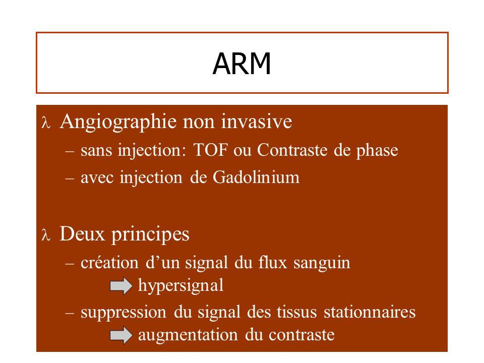 ARM Angiographie non invasive – sans injection: TOF ou Contraste de phase – avec injection de Gadolinium Deux principes – création dun signal du flux sanguin hypersignal – suppression du signal des tissus stationnaires augmentation du contraste