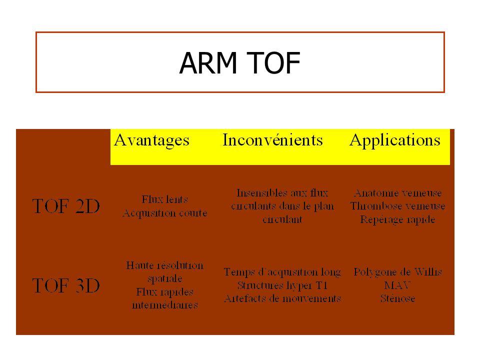 ARM TOF