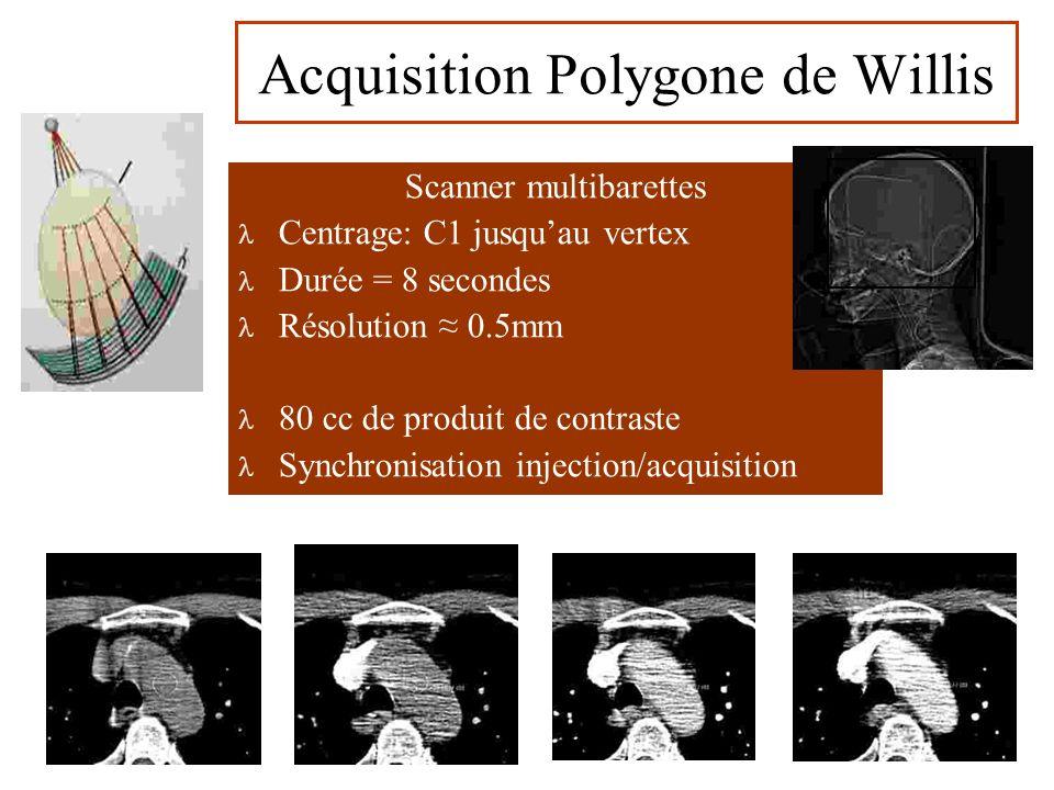 Scanner multibarettes Centrage: C1 jusquau vertex Durée = 8 secondes Résolution 0.5mm 80 cc de produit de contraste Synchronisation injection/acquisition Acquisition Polygone de Willis