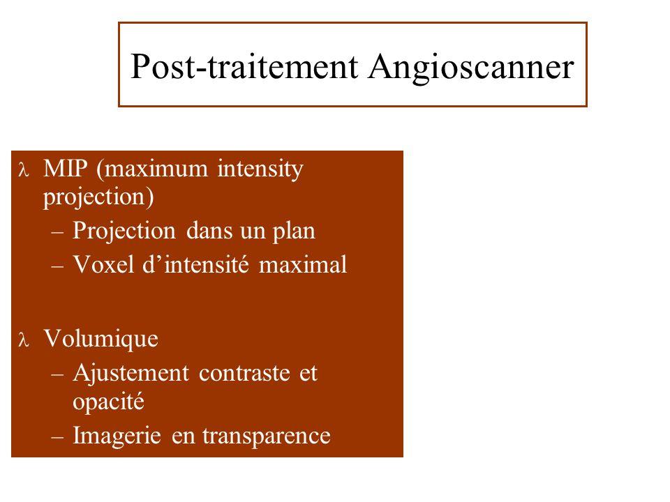 MIP (maximum intensity projection) – Projection dans un plan – Voxel dintensité maximal Volumique – Ajustement contraste et opacité – Imagerie en transparence Post-traitement Angioscanner
