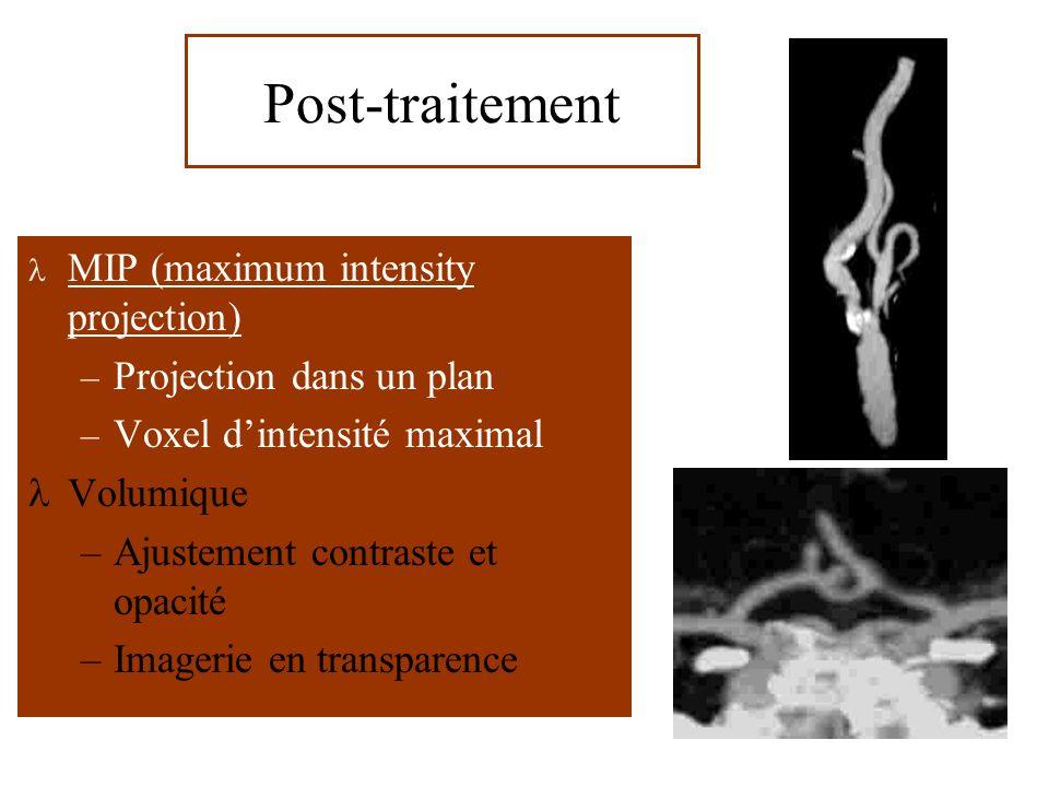 MIP (maximum intensity projection) – Projection dans un plan – Voxel dintensité maximal Volumique –Ajustement contraste et opacité –Imagerie en transparence Post-traitement