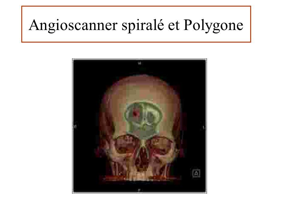 Angioscanner spiralé et Polygone Etude du polygone de Willis