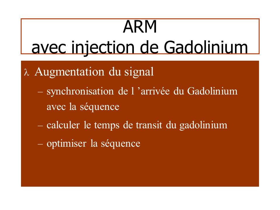 3D TOFARM-Gd Anévrysmes intracrâniens