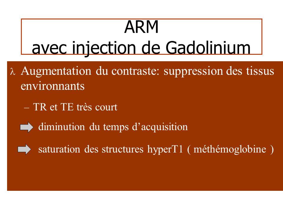 ARM Gd – Avantages Séquences rapides Pas dartéfact de flux Saturation des tissus – Limites Retour veineux Superpositions vasculaires – Indications Suivi après embolisation Anévrysmes géants Anévrysmes intracrâniens