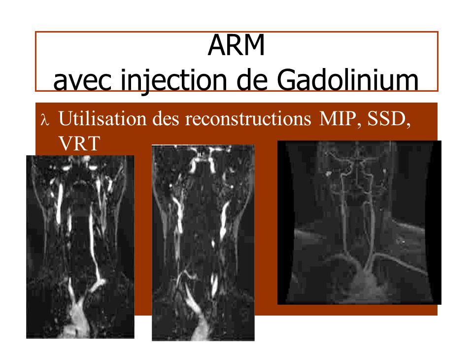 ARM Temps de vol Limites – Temps dacquisition (3 – 4 min) – Saturation incomplète des tissus (contraste passable) – Artefacts de flux (flux lents, turbulences) – Hypersignal des substances à T1 court (graisse, hématome)