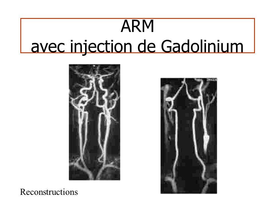 ARM - Gd Principe – Echo de gradient 3D – Séquences rapides (30 - 40 sec) – Saturation des tissus (TR/TE courts) – Injection gadolinium – Raccourcissement T1 – Hypersignal proportionnel Gd – Image angiographiques (MIP)
