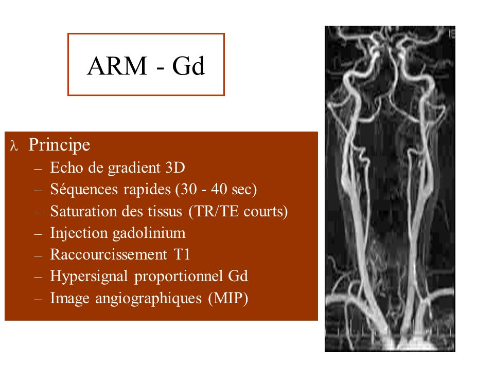 ARM - Gd Technique – Antenne vasculaire dédiée – Acquisition plan coronal – Injection 0.2 mL/Kg – Fluoroscopie RM – Lecture spiralée PF – Reconstructions chaque carotide