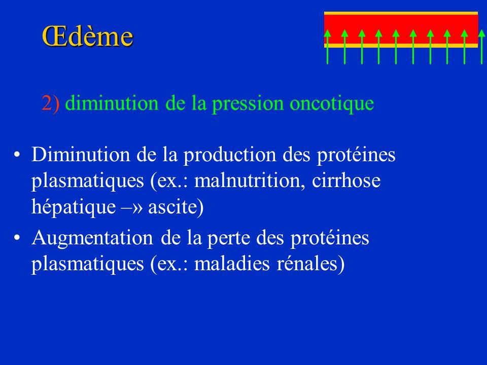 Œdème Diminution de la production des protéines plasmatiques (ex.: malnutrition, cirrhose hépatique –» ascite) Augmentation de la perte des protéines