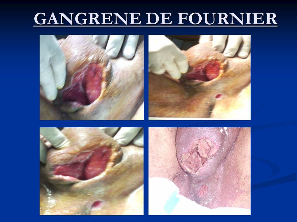 GANGRENE DE FOURNIER