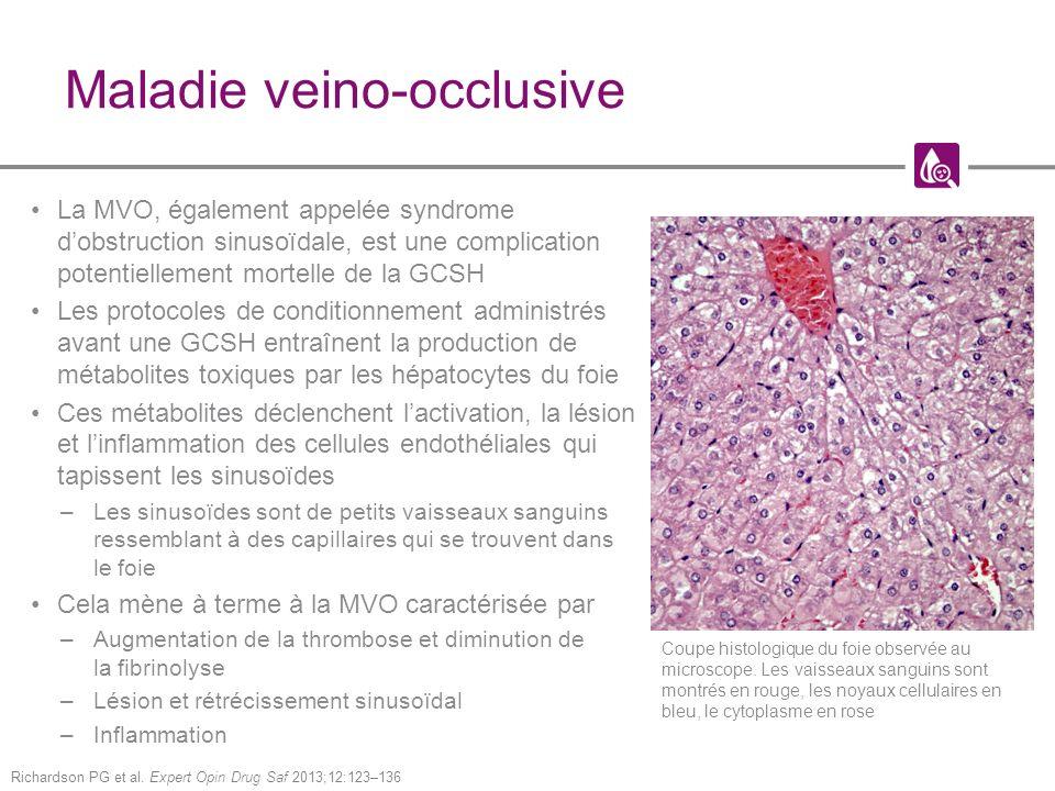 Maladie veino-occlusive La MVO, également appelée syndrome dobstruction sinusoïdale, est une complication potentiellement mortelle de la GCSH Les protocoles de conditionnement administrés avant une GCSH entraînent la production de métabolites toxiques par les hépatocytes du foie Ces métabolites déclenchent lactivation, la lésion et linflammation des cellules endothéliales qui tapissent les sinusoïdes –Les sinusoïdes sont de petits vaisseaux sanguins ressemblant à des capillaires qui se trouvent dans le foie Cela mène à terme à la MVO caractérisée par –Augmentation de la thrombose et diminution de la fibrinolyse –Lésion et rétrécissement sinusoïdal –Inflammation Richardson PG et al.