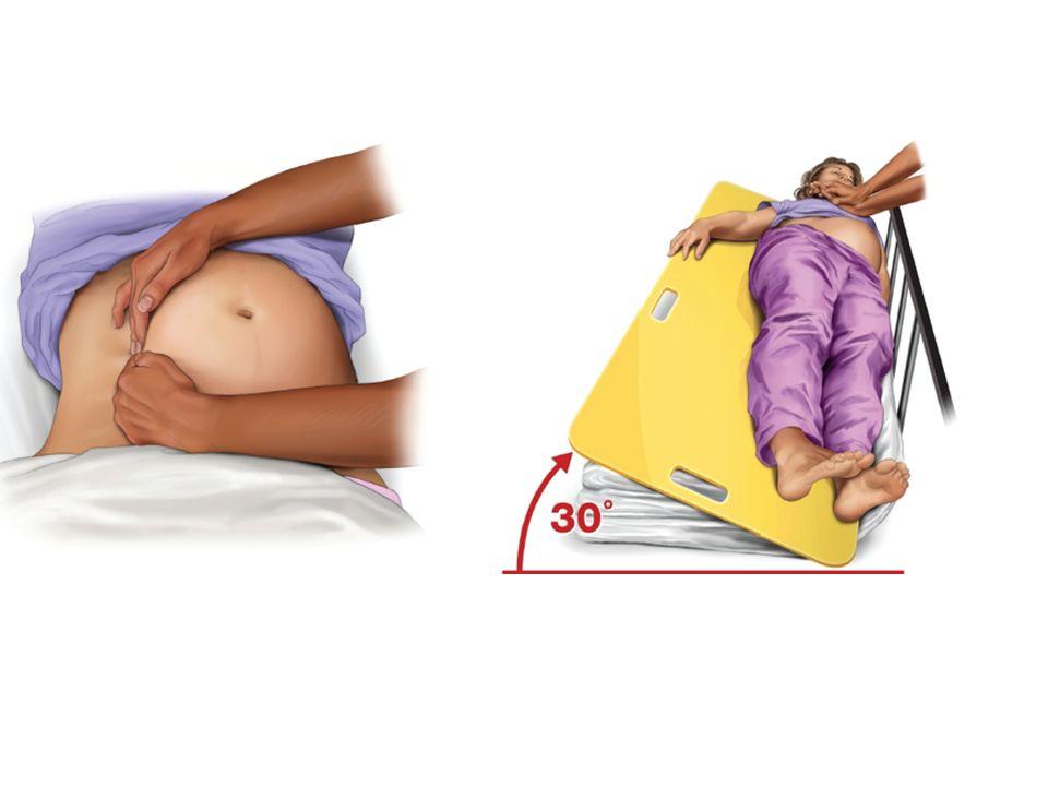 Règle de 4 minutes 5 minutes pour acoucher foetus - Études demontrent meilleure survie Donc, 4 minutes pour prendre la decision et 1 minute pour la procedure – Incision epigastrique jus quau symphyse pubienne – Incision 2cm fond de luterus – Extension verticale de cette incision avec scissaux Peut sauver foetus mais plus important pour la patiente (diminue demande physiologique)