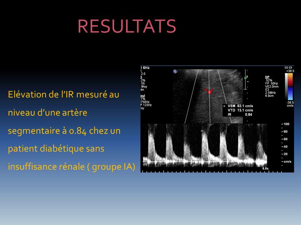 Elévation de lIR mesuré au niveau dune artère segmentaire à 0.84 chez un patient diabétique sans insuffisance rénale ( groupe IA) RESULTATS