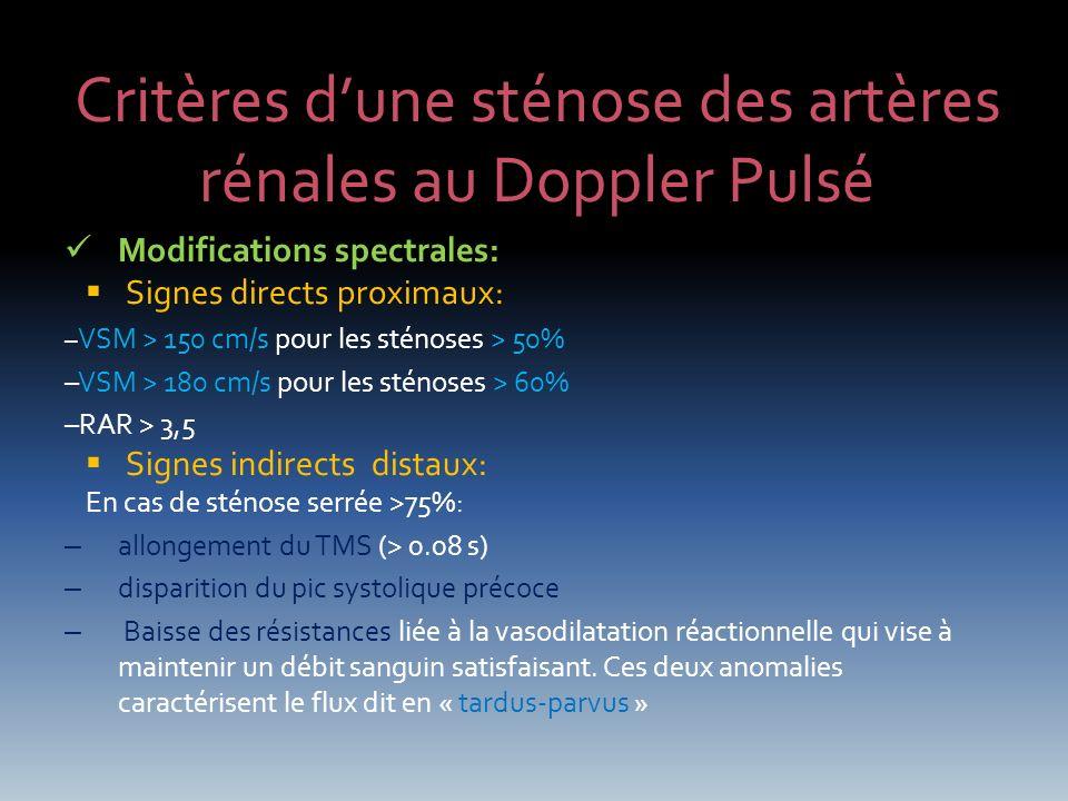 Critères dune sténose des artères rénales au Doppler Pulsé Modifications spectrales: Signes directs proximaux: – VSM > 150 cm/s pour les sténoses > 50