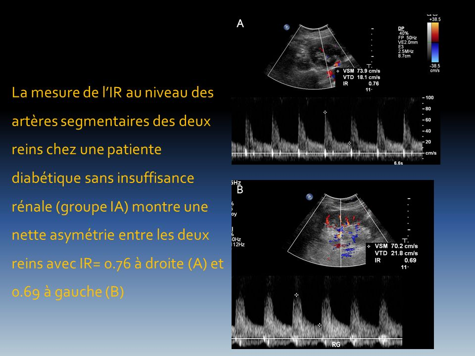 La mesure de lIR au niveau des artères segmentaires des deux reins chez une patiente diabétique sans insuffisance rénale (groupe IA) montre une nette