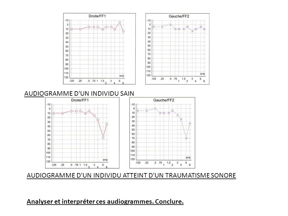 AUDIOGRAMME D'UN INDIVIDU SAIN AUDIOGRAMME D'UN INDIVIDU ATTEINT D'UN TRAUMATISME SONORE Analyser et interpréter ces audiogrammes. Conclure.