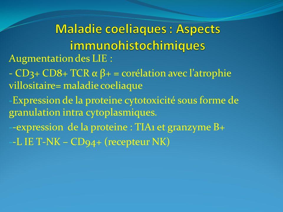 Augmentation des LIE : - CD3+ CD8+ TCR α β+ = corélation avec latrophie villositaire= maladie coeliaque - Expression de la proteine cytotoxicité sous