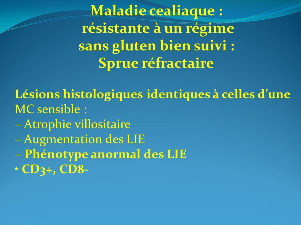 Maladie cealiaque : résistante à un régime sans gluten bien suivi : Sprue réfractaire Lésions histologiques identiques à celles dune MC sensible : – A