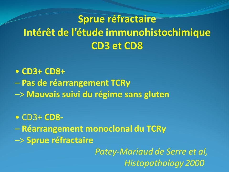 Sprue réfractaire Intérêt de létude immunohistochimique CD3 et CD8 CD3+ CD8+ – Pas de réarrangement TCRγ –> Mauvais suivi du régime sans gluten CD3+ C