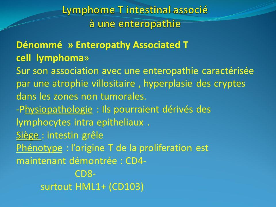 Siège Dénommé » Enteropathy Associated T cell lymphoma» Sur son association avec une enteropathie caractérisée par une atrophie villositaire, hyperpla