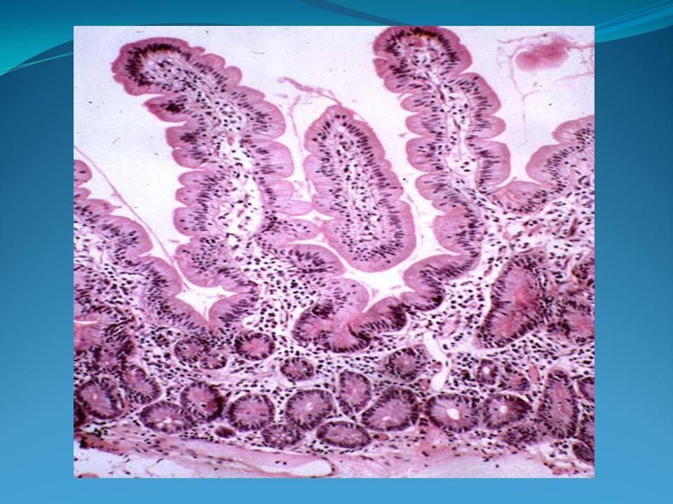 Sprue réfractaire Atrophie villositaire symptomatique mimant une maladie coeliaque (avec augmentation des lymphocytes intra-épithéliaux LIE) mais phénotype anormal CD3+ CD8- et réarrangement clonal du TCRγ) plus de 6 mois Après exclusion d un lymphome intestinal invasif Evolution à long terme.