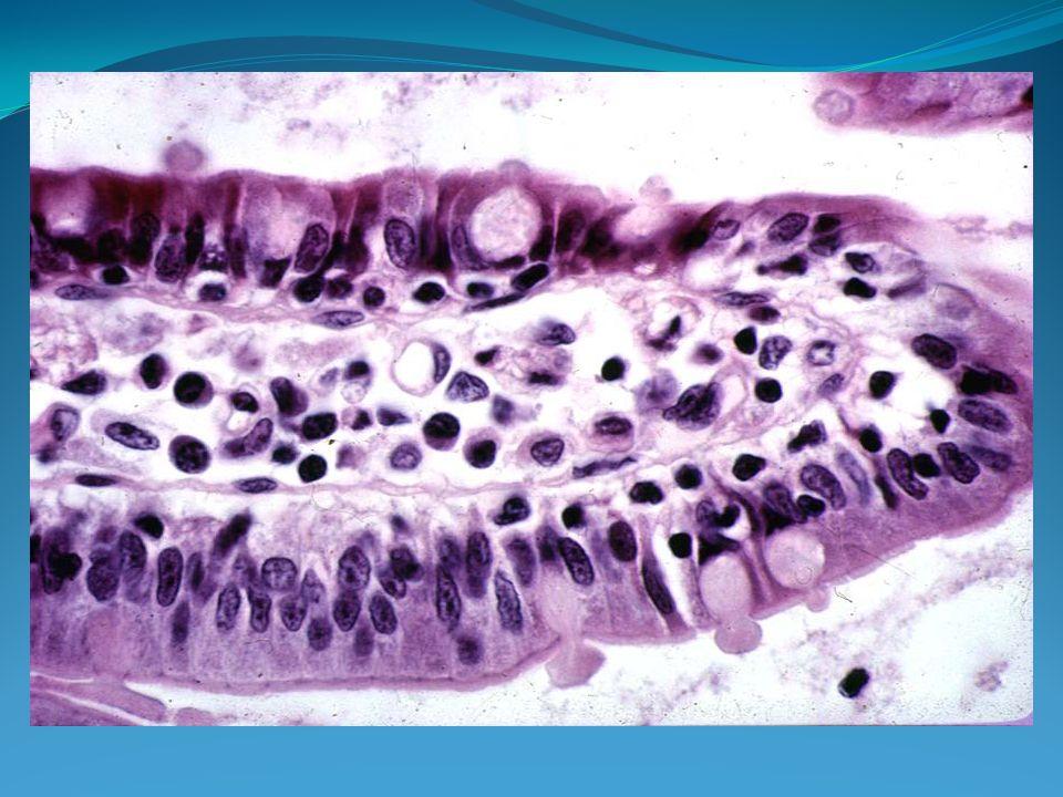Les critères histologiques de la MC associent: *Une atrophie villositaire.