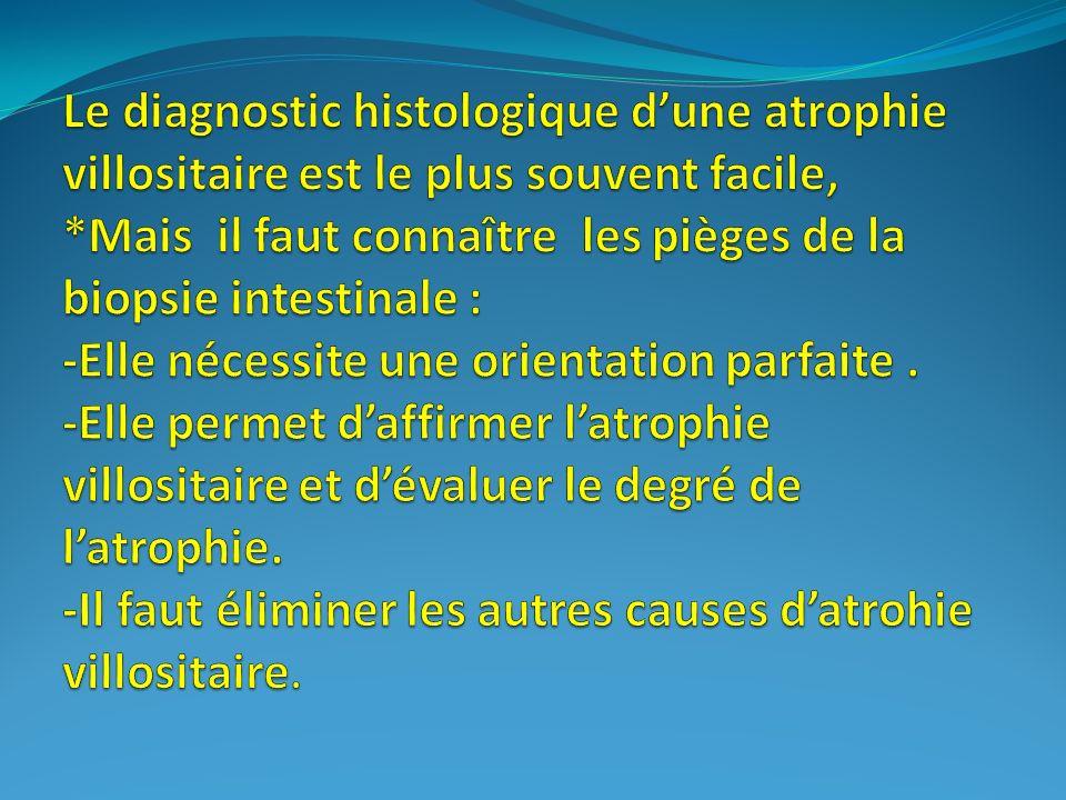 Maladie coeliaque Classification histologique simplifiée Muqueuse normale AV partielle AV sub-totale AV totale