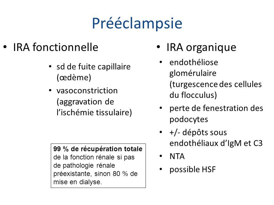 Prééclampsie sd de fuite capillaire (œdème) vasoconstriction (aggravation de lischémie tissulaire) endothéliose glomérulaire (turgescence des cellules